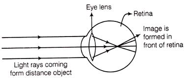 Myopic Eye Image Formation