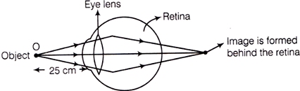 Hypermetropic Eye Image Formation
