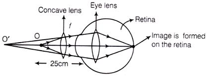 Corerction of Myopic Vision