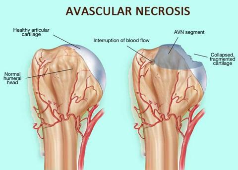 Vascular Necrosis bone disease