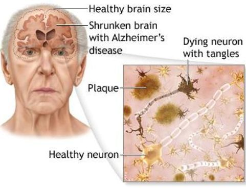 Brain shrunken in Alzeihmers disease
