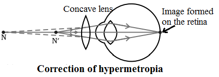 correction of hypermetropia