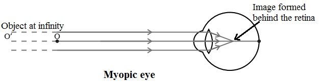 Myopic Eye Defect