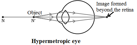 hypermetropic eye defect