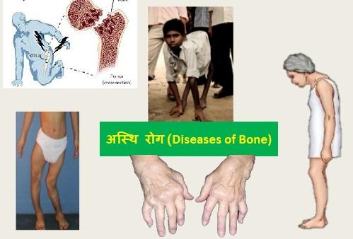 List of diseases of bone
