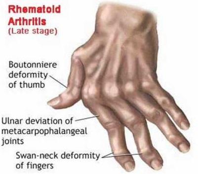 Arthritis bone disease