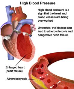 Risks-of-high-blood-pressure