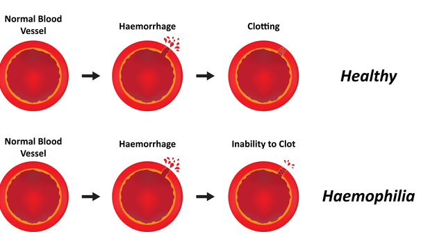 What is Hemophilia Disease