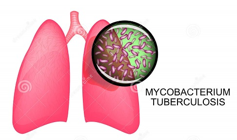 lungs with tb
