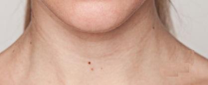 mole on neck