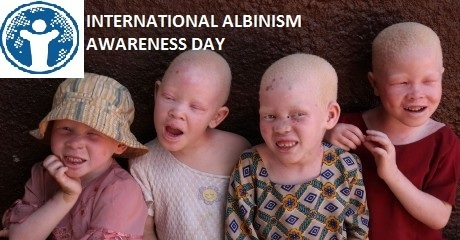 Albinism   Day