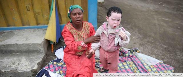 International Albinism Awareness Day 2017=