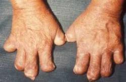 Leprosy-Detection-campaign