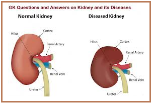 GK Questions and Answers on Kidney and its diseases